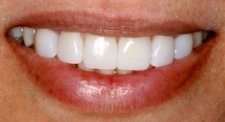 teeth veneer transformation
