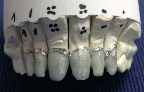 6 Unit Veneers: Feldspathic Veneer Photos and Brief Description