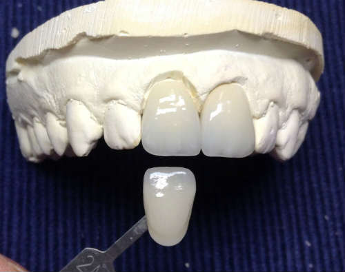 emax veneers testing color