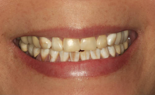 before-picture-emax-crowns