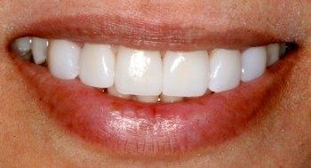 teeth veneer transformation