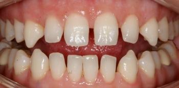 adult baby teeth