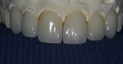 Veneers-close-gap-between-teeth
