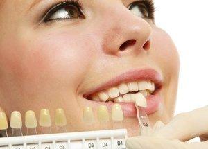 Cosmetic dentist veneers