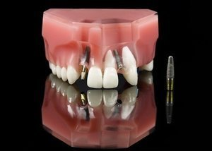 Model showing dental implant with some plastic teeth fitted