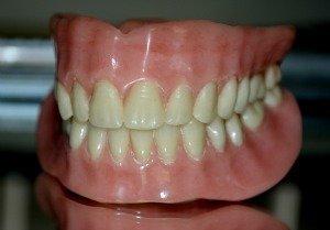 Dentures - false theeth