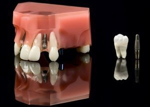 Dental implants cost. Model showing a titanium implants