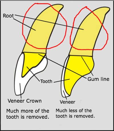 veneer vs veneer crown