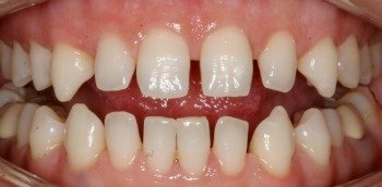 Baby teeth in adults