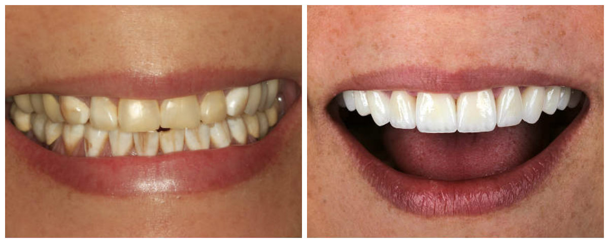 before-after-emax-anteriror-crowns