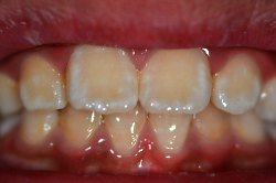 White Stains on Teeth After Whitening Colgate Oral